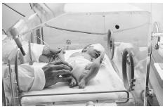 Newborns can be treated for jaundice with phototherapy in NICUs, one of the many technologies available in intensive care units. AMERICAN ACADEMY OF PEDIATRICS